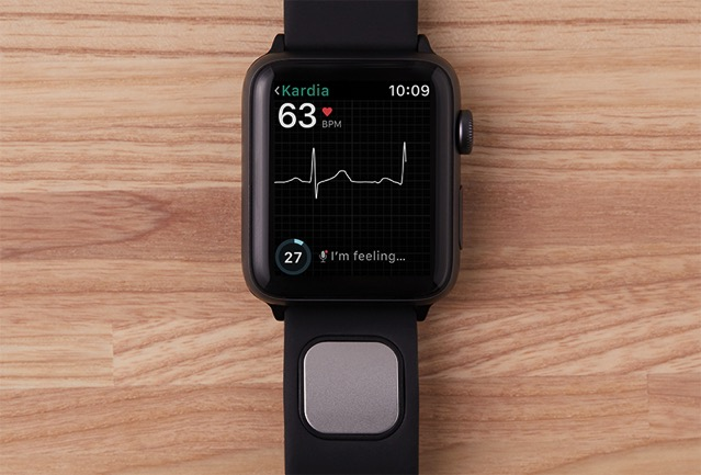 AliveCor's KardiaBand takes a medical-grade EKG on your wrist in seconds