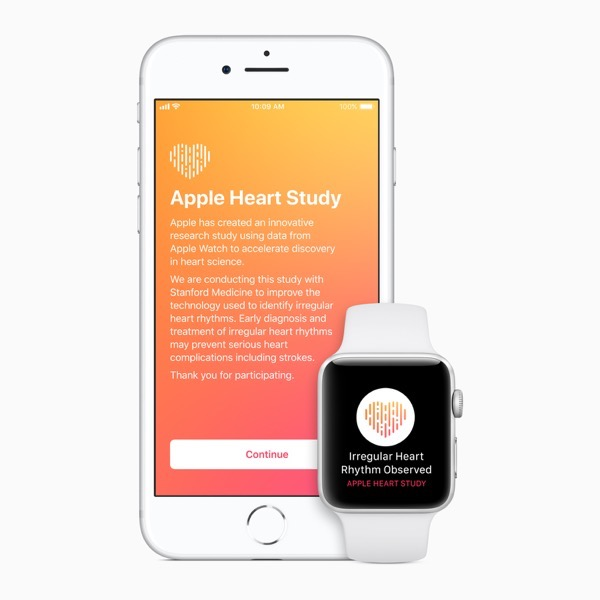 Apple Watch can safely detect irregular heartbeat