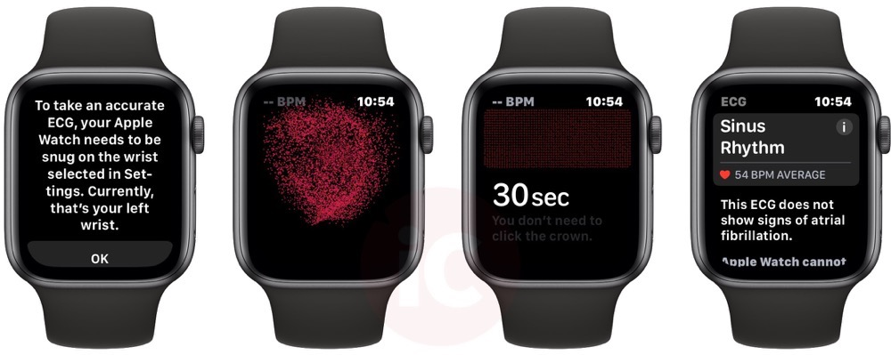 Apple watch ECG first
