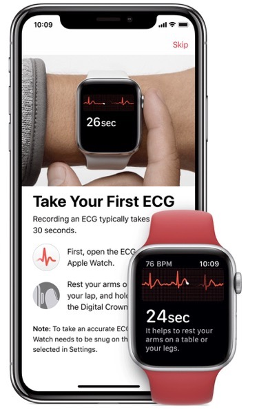 Apple watch first ECG