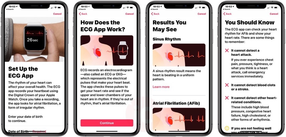 Health app ecg iphone