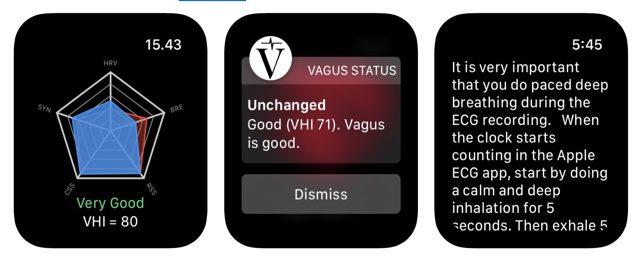 Vagus ECG Apple Wach 2